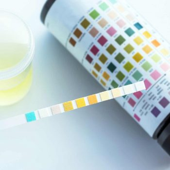 Clinical Urine Medical Lab Test