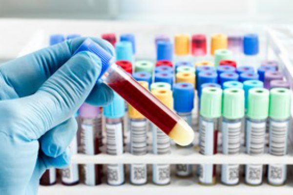 blood-Test-card