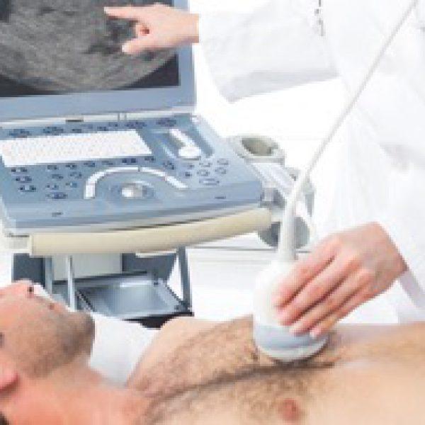 echo-cardiogram-card
