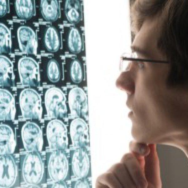 neurologist-card